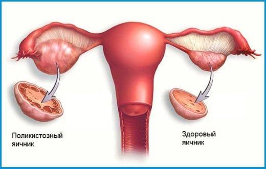 Синдром поликистозных яичников, симптомы: прекращение месячных