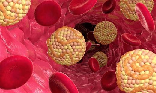 как быстро снизить холестерин статинами