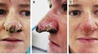 Зубчатый морской нос