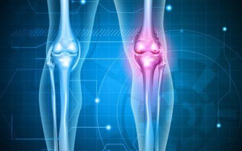 Осторожно: остеопороз коленного сустава, рассмотрим симптомы и лечение