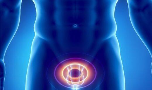Причины возникновения простатита у мужчин: отчего и почему?