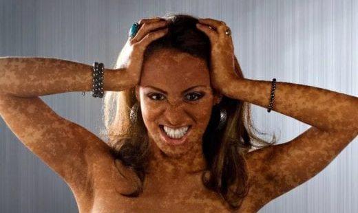 12 причин почему образуется пигментация кожи на ногах