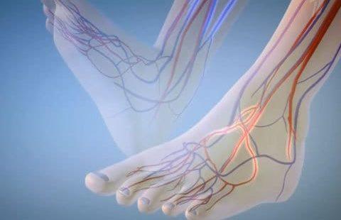 Болезни сосудов ног— можно ли лечить народными средствами?