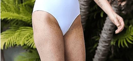 пигментация кожи на ногах причины