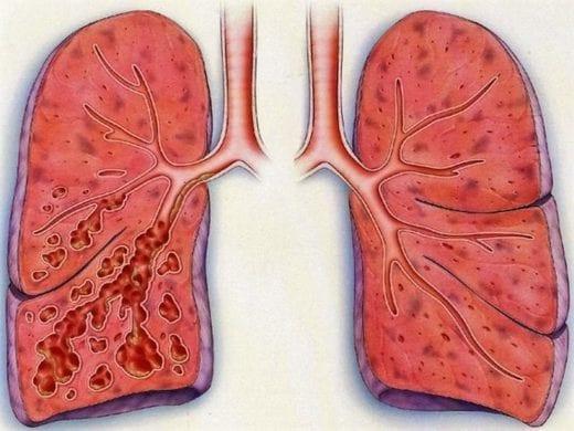 лечение бронхоэктатической болезни лёгких