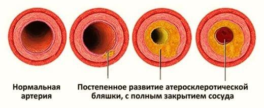 атеросклеротическая болезнь сердца причина смерти