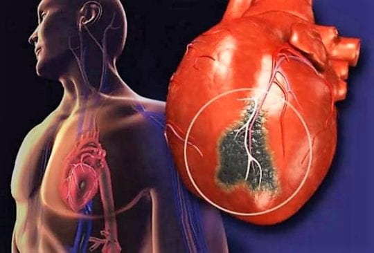 Последствия инфаркта