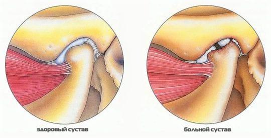 артрит челюстно лицевого сустава, симптомы и лечение