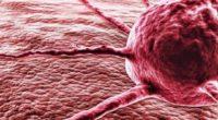 Двенадцать зловещих симптомов онкологических заболеваний