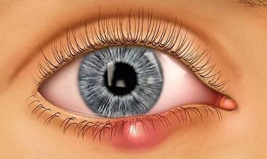 Ячмень на глазу, причины появления и лечение у детей