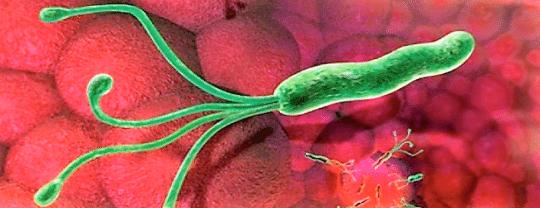 Как лечить бактерию хеликобактер пилари в желудке? Поможет четырёхкомпонентная схема