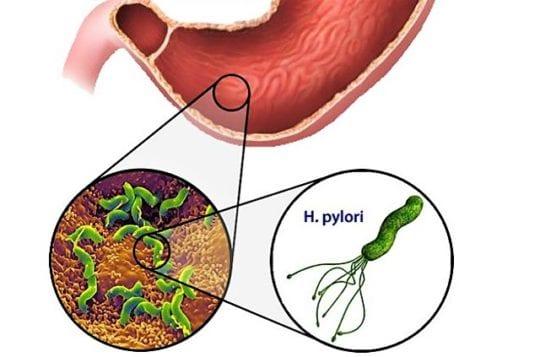 бактерия хеликобактер пилари