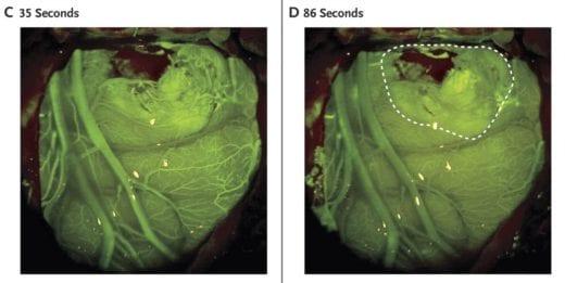 флуоресцеина в разрезе глиобластомы