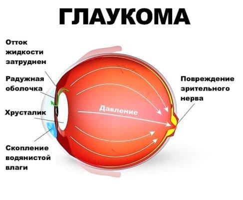 внутриглазное давление и глаукома