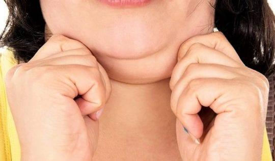 второй подбородок при ожирении