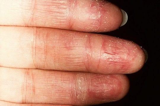 кожа на пальцах рук