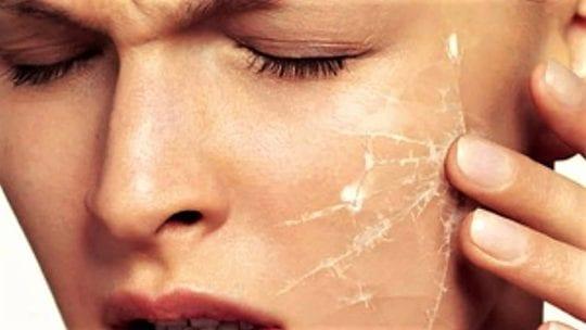 кожа сохнет на лице