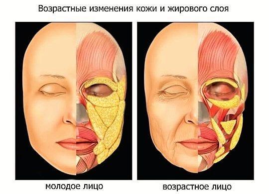 возрастное изменение лица