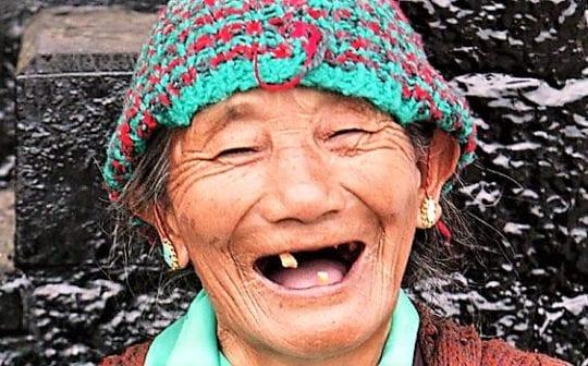 выпадения зубов