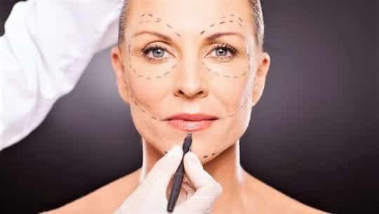 Круговая подтяжка лица: как она делается, есть ли альтернатива?