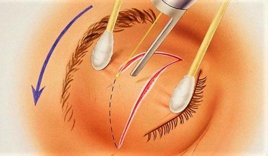 Лечение птоза операцией