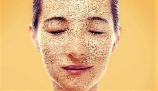 Сухая кожа лица: от каких причин зависит и что делать в этом случае?