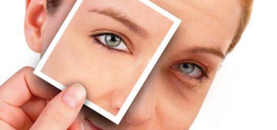 Мешки под глазами, причины их появления внешние и внутренние