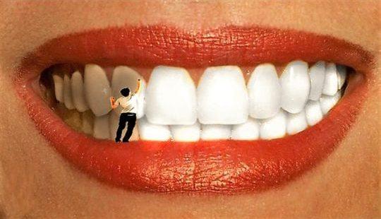 Отбеливание зубов в домашних условиях: подручными средствами