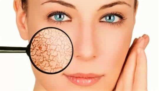 Почему шелушится кожа на лице: причины и что с этим делать?