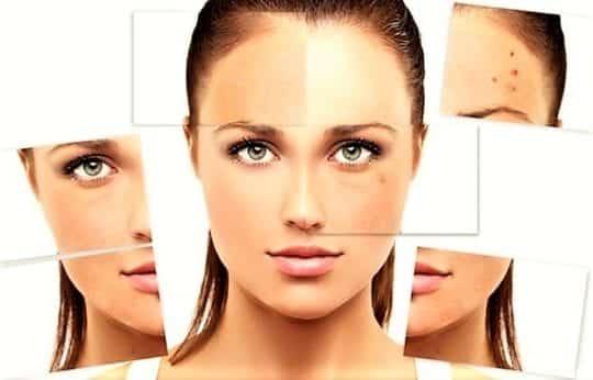 Уход за комбинированной кожей лица: каждодневные процедуры