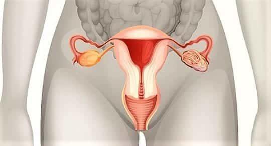 Миома матки: причины возникновения, симптомы и признаки