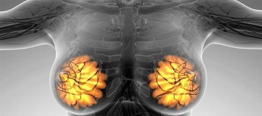 Лечение фиброзно-кистозной мастопатии: консервативные и народные методы