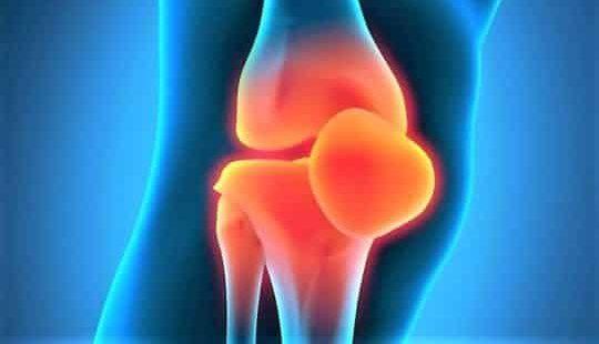 Артроз: симптомы, диагностика, лечение и почему он развивается?