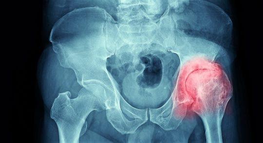Артроз тазобедренного сустава: симптомы, признаки и как избежать операции