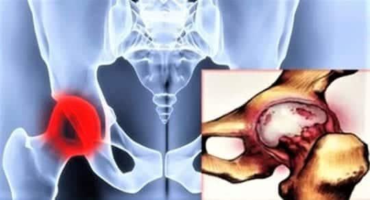 Артроз тазобедренного сустава воспаление