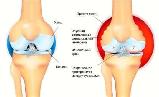 Ревматоидный артрит: симптомы, диагностика и как лечить недуг?