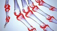 Артрит: симптомы, как отличить его от артроза, диагностика и исцеление