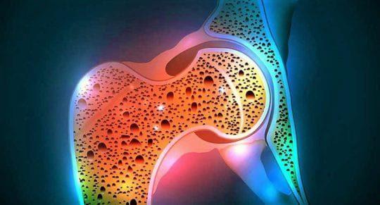 Остеопороз: причины развития, факторы риска, осложнения, лечение и питание