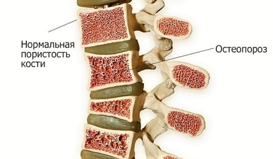 остеопороз-позвоночника