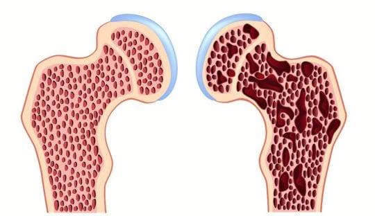 остеопороз сустава