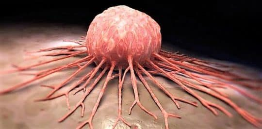 Рак: Что провоцирует? Виды, лечение и профилактика