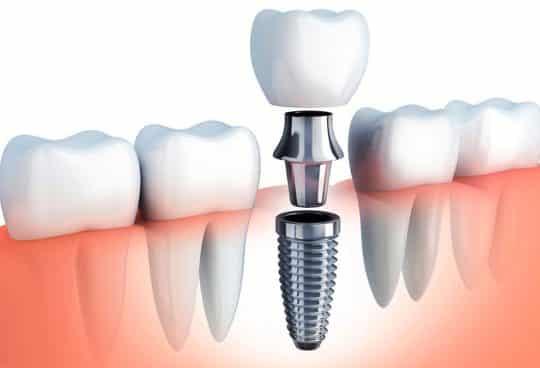 Имплантация зубов: строение импланта, виды, подготовка и установка